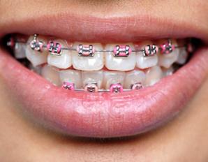 chicago-braces